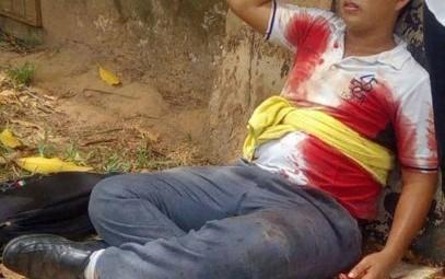 Disputa amorosa deja herido a un estudiante de CBTIS